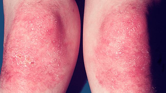 Dermatomiositis: ¿qué es? - el yogur